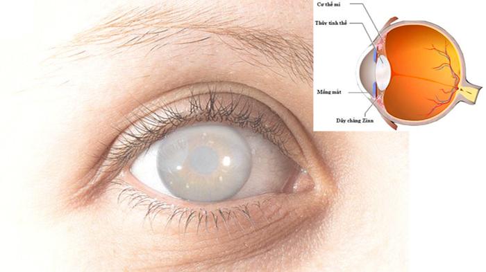 Bệnh không chữa trị kịp thời có thể gây mù lòa vĩnh viễn