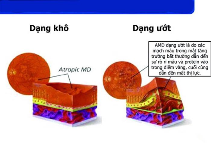 Hiện chưa có cách chữa trị triệt để thoái hóa điểm vàng ở cả 2 thể khô và ướt