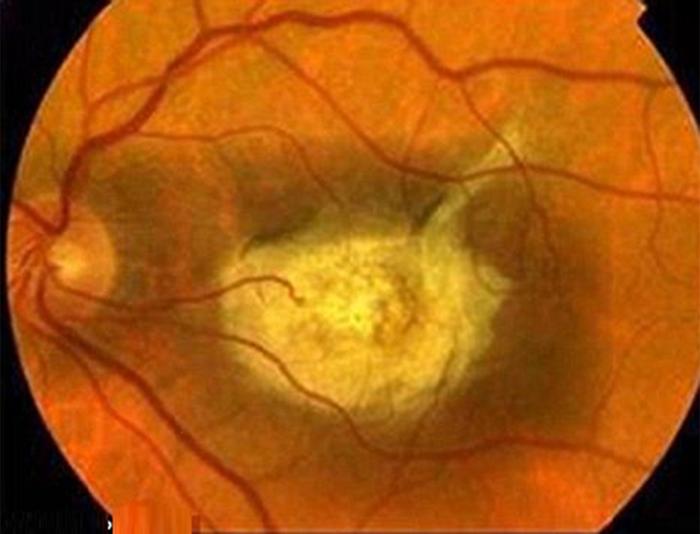 Thoái hóa điểm vàng thể ướt là bệnh nguy hiểm có thể dẫn đến mất thị lực