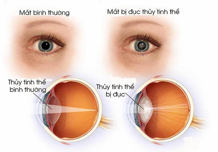 Bệnh nhân tiểu đường dễ gặp phải biến chứng đục thủy tinh thể ở mắt