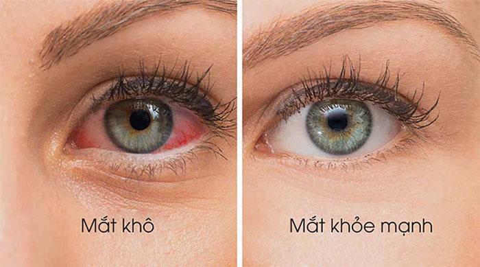 Khô mắt là vấn đề mà nhiều người thường xuyên gặp phải