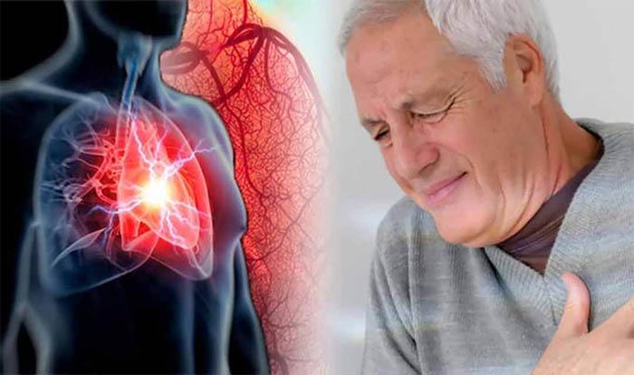 Bệnh tim mạch vô cùng nguy hiểm và chiếm tỷ lệ tử vong hàng đầu hiện nay