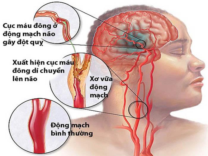 Cục máu đông là nguyên nhân chủ yếu gây đột quỵ não