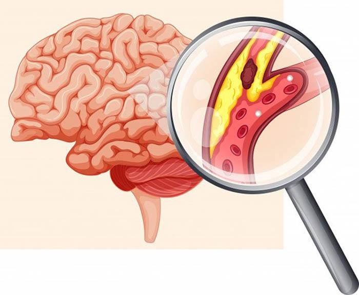 Cục máu đông trong não gây ảnh hưởng nguy hiểm đối với con người